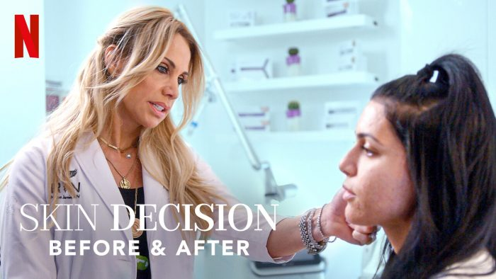 Netflix Skin Decisions: Before & After introduces reality of plastic surgery world